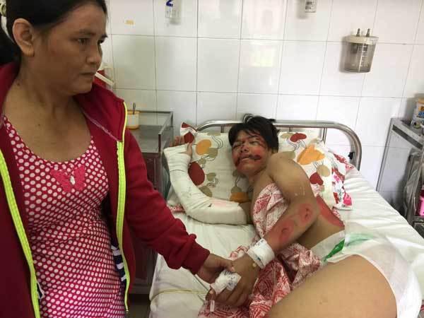 tai nạn, BV Nhi Đồng 2, viện phí, bảo hiểm y tế