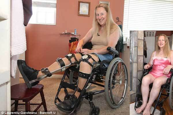 Chứng bệnh kỳ lạ tự chặt chân, thích được mù