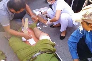 Thượng tá Công an bị con nghiện đánh trọng thương