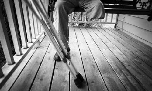Người tự cắt cụt chân mắc bệnh lạ đầu tiên ở Việt Nam