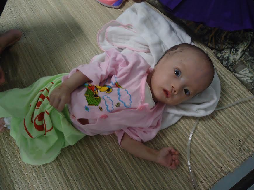 Thương bé gái 3 tháng tuổi đối diện nhiều ca phẫu thuật