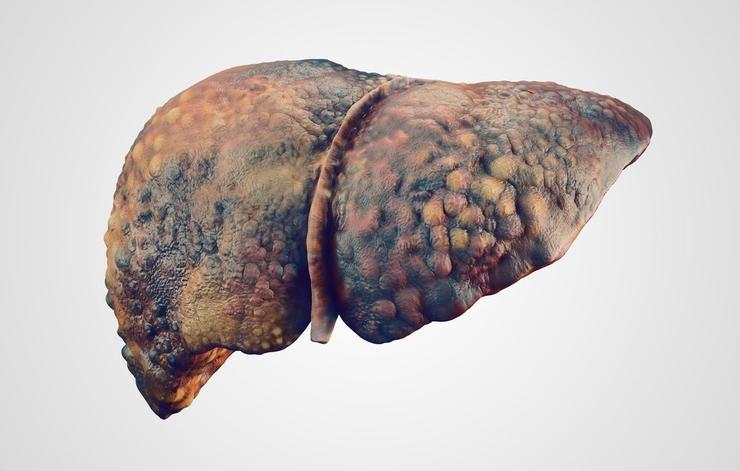 5 căn bệnh nguy hiểm hơn ung thư