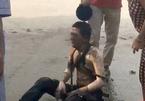 Dội nước đá cứu người bị bỏng, đúng hay sai?