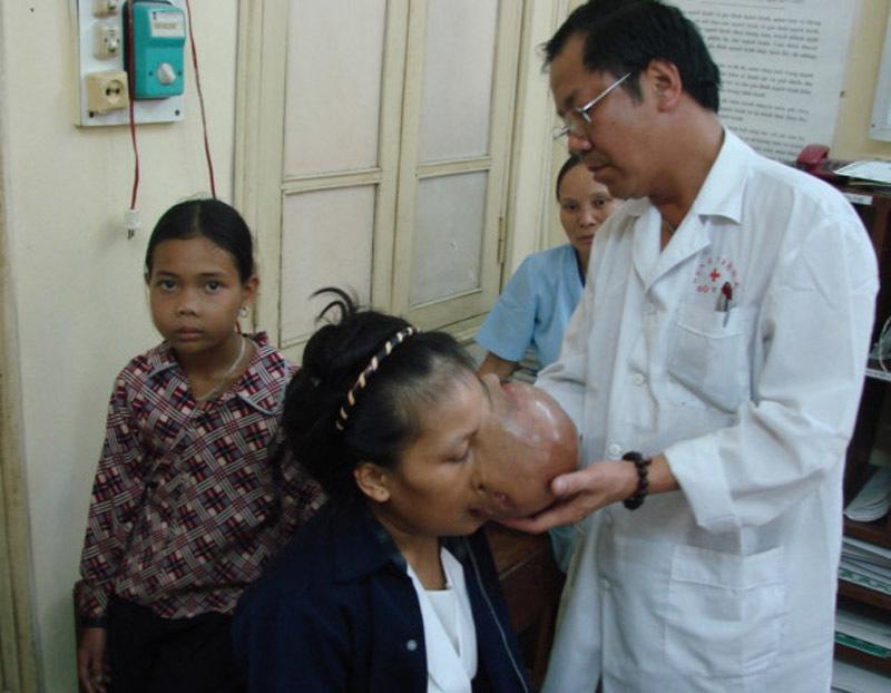 BS Nguyễn Quốc Bảo, u quái, khối u