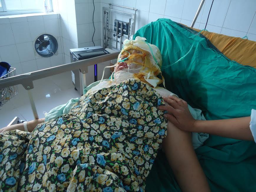 Tự thiêu, người phụ nữ tâm thần nguy kịch vì bỏng nặng