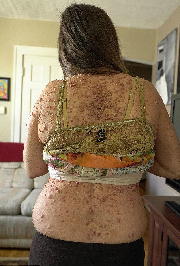 Người phụ nữ mang gần 6.000 u bướu trên cơ thể