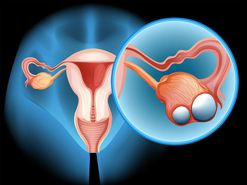 5 sự thật cần biết về ung thư buồng trứng