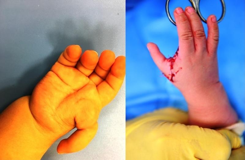 """""""Biến"""" ngón trỏ thành ngón cái cho bé trai 1 tuổi"""