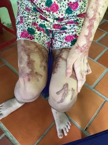 Ẩn ức người đàn bà bị tạt axít giữa Sài Gòn
