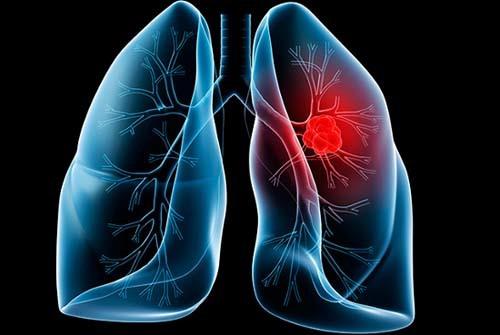 ung thư phổi,hút thuốc lá,Ung thư di căn