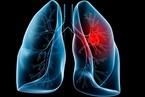 Vì sao không thuốc lá vẫn mắc ung thư phổi