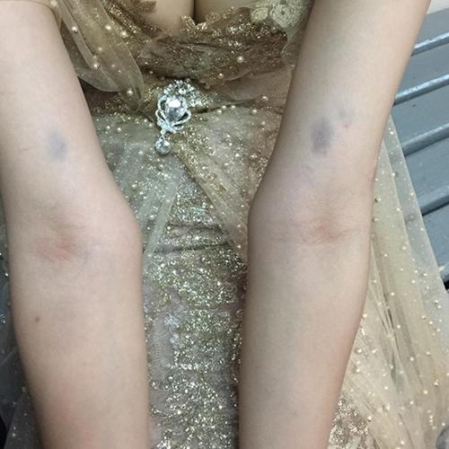 Bị 'ném đá', ngã chấn thương đầu, Khả Trang vẫn có giải