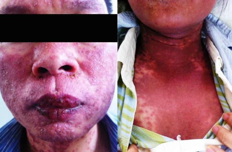 Bị viêm loét cơ thể khi dùng thuốc chữa gút
