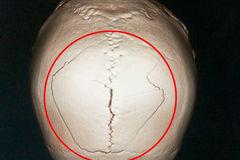 Té ngã 3 tháng mới biết bị chấn thương sọ não