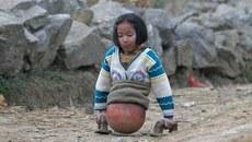 Cuộc đời tuyệt diệu của 'cô bé bóng rổ' chỉ có nửa người