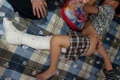 Công an vào cuộc vụ học sinh tự ngã gãy xương đùi ở sân trường
