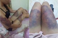 Hà Nội: Cô gái trẻ 'tố' bạn trai hành hung dã man