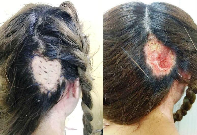 làm đẹp, uốn tóc, hấp dầu cho tóc, bệnh viện Trưng Vương, cầu cứu bác sĩ, sự cố