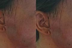 Bơm má xóa nếp nhăn để đón tết, người phụ nữ nhập viện vì bị tai biến
