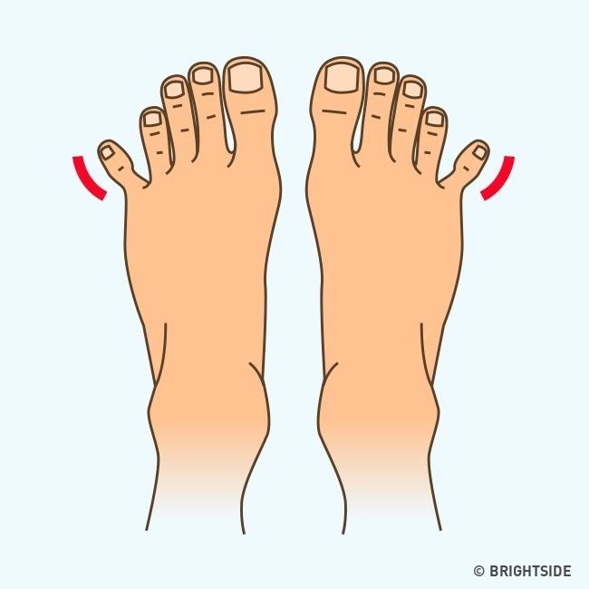 Hình dáng bàn chân tiết lộ điều gì về bạn?