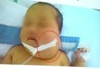 10 giờ phẫu thuật cứu bé sơ sinh mắc căn bệnh đầu tiên ở VN