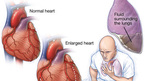 Phòng ngừa suy tim trong mùa đông