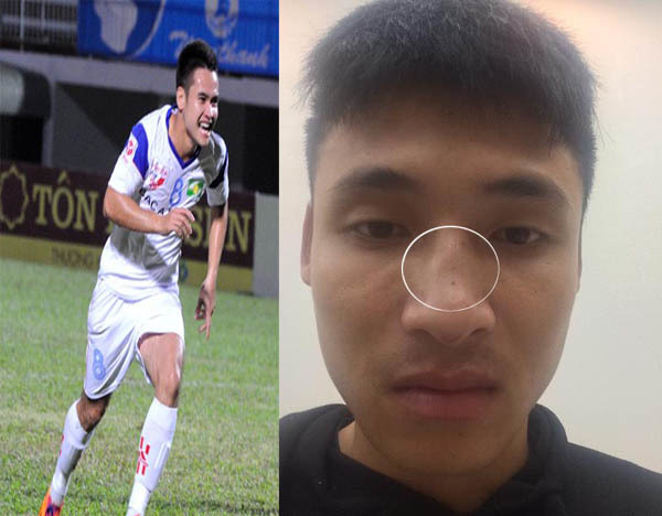 Tiền đạo SLNA bị tố đấm gãy sống mũi cầu thủ Đắk Lắk