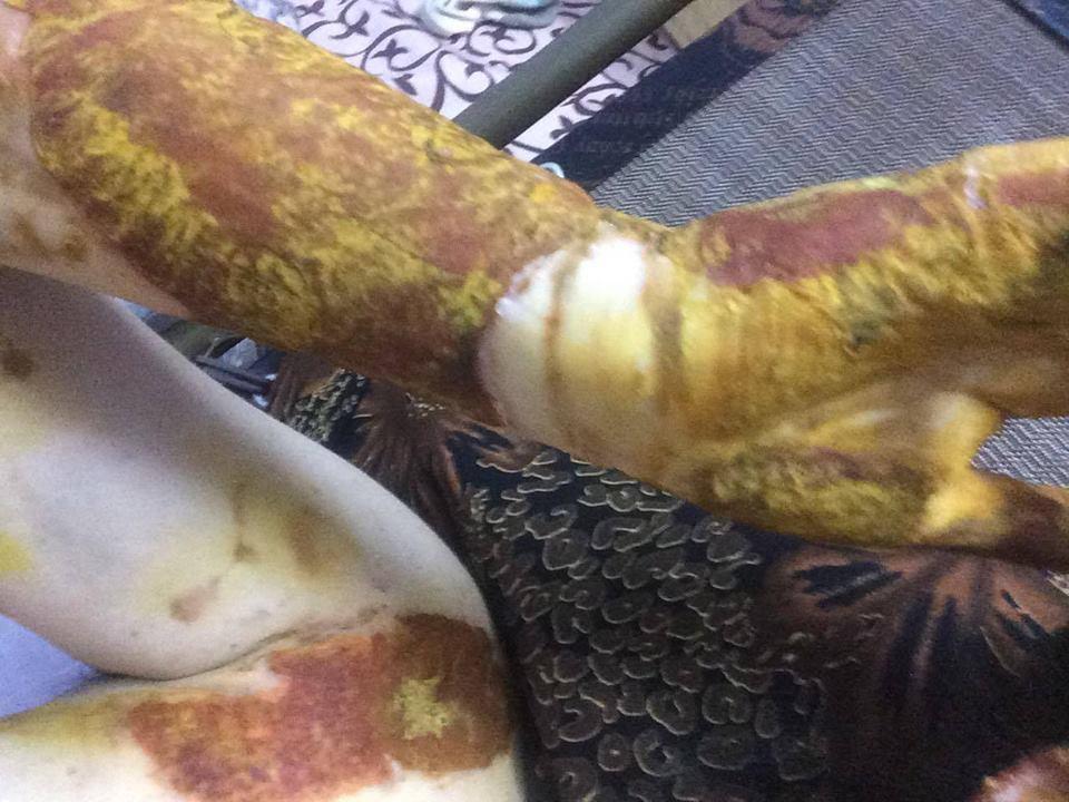 Một nữ sinh bị bỏng nặng sau giờ thực hành thí nghiệm ở trường