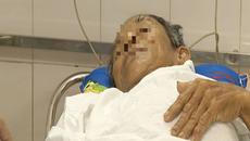 Đi ăn cỗ, cụ ông bị mẩu xương đâm sát động mạch chủ tim