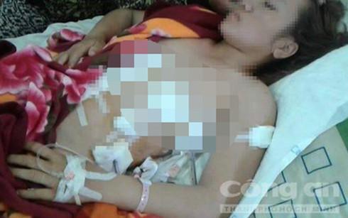 Người vợ trẻ bị nhân tình của chồng đâm 7 nhát dao