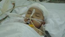 Bị tivi rơi trúng đầu, bé trai 22 tháng tuổi chấn thương sọ não nguy kịch