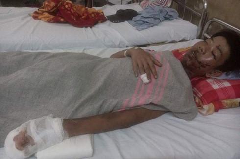 Nghịch pháo tự chế, cậu bé 16 tuổi bị hỏng mắt