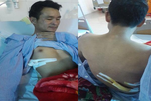 Chủ tịch Bắc Ninh yêu cầu làm rõ vụ thanh niên cứu người lại bị đâm