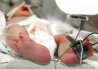 Bé 2 tuổi tử vong nghi do viêm não mô cầu