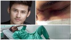 Diễn viên phải cấp cứu vì bị ngã gãy xương mũi