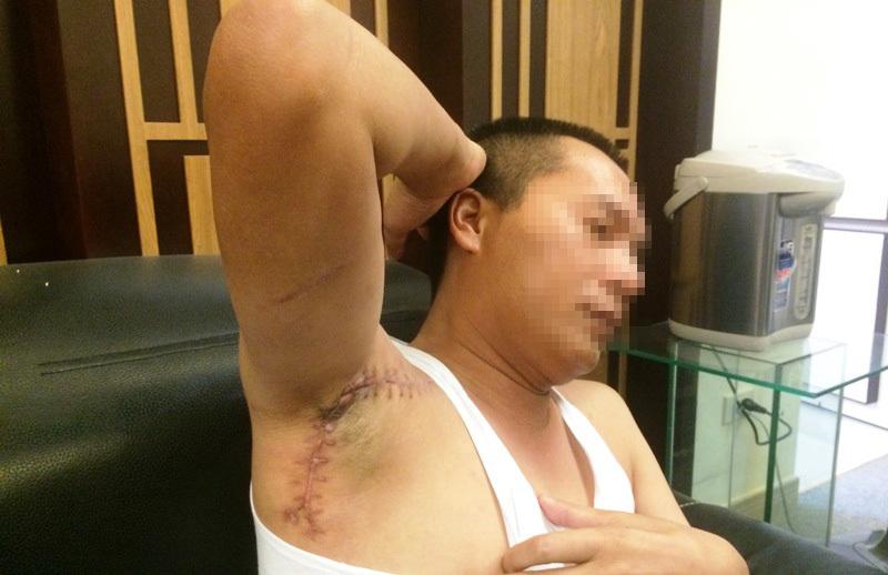 Người phụ nữ Hải Phòng thuê sát thủ bắn người tình hầu tòa