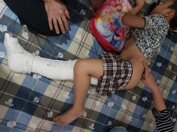 Dư luận mong sớm công bố nguyên nhân học sinh Nam Trung Yên gãy chân