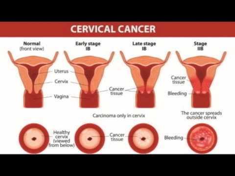 5 dấu hiệu ung thư cổ tử cung dễ bị bỏ qua