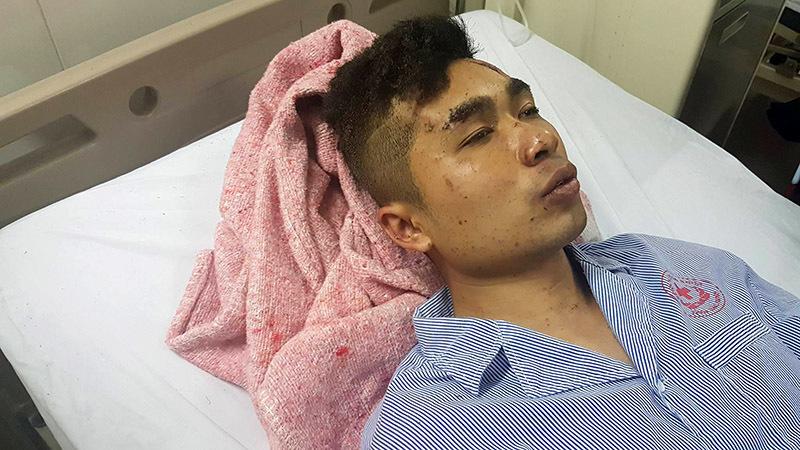 Nhân chứng vụ nổ xe khách: Cơ thể tôi bay từ cuối lên đầu xe