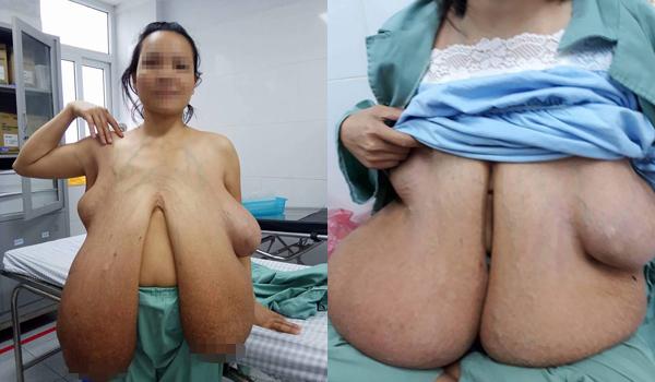 Người phụ nữ 31 tuổi mang bộ ngực khổng lồ, dài quá bẹn