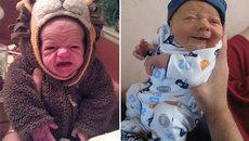 Những em bé mang khuôn mặt già nua khó tin