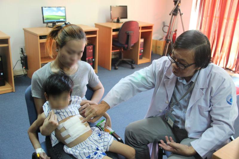 Bệnh viện Nhi đồng 1, bệnh nhi, ăn tóc, Rapunzel, dạ dày, suy dinh dưỡng