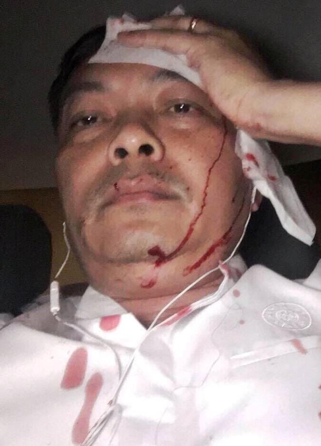 Giám đốc cà phê Trung Nguyên bị đánh nhập viện ở Sài Gòn