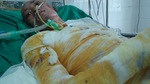 Chồng ung thư, con trai bỏng nặng, một mình mẹ không lo nổi