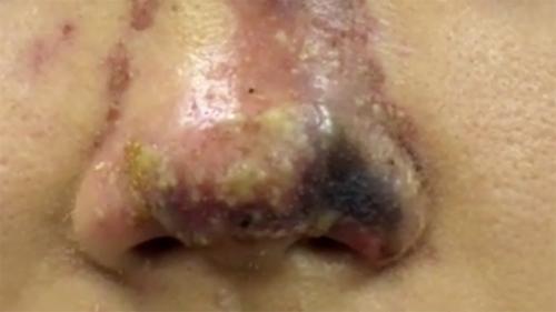 Thiếu nữ 17 hoại tử mũi vì nâng ở spa