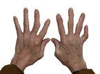 Bài thuốc chữa viêm khớp hiệu quả từ khoai lang và chuối