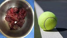 Khối u não to như quả bóng tennis trong đầu người phụ nữ