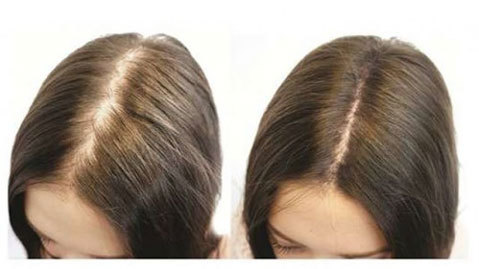 rụng tóc, chống rụng tóc, điều trị rụng tóc, rụng tóc sau sinh, kích thích tóc mọc nhanh, Vitamin, Vitamin B1