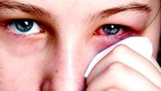 Rước bệnh vì dùng kính mắt 'rởm'