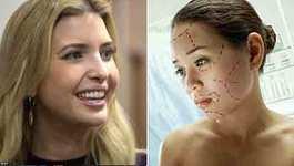 Chị em đua nhau phẫu thuật giống con gái Tổng thống Trump